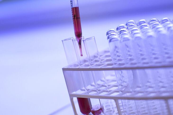 בדיקת ביופסיה נוזלית