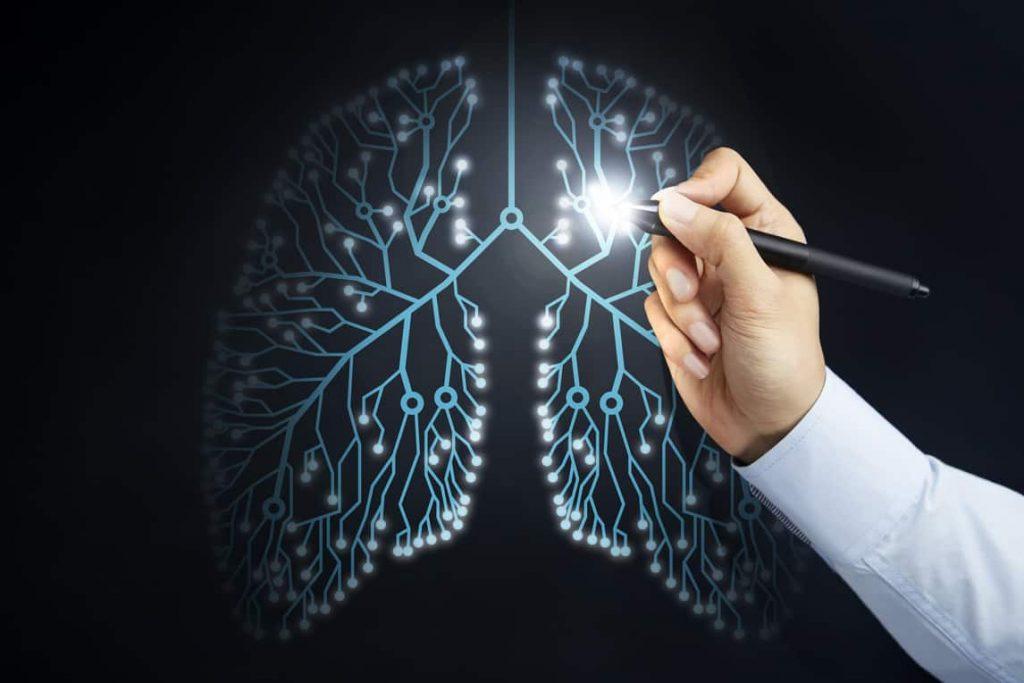 סרטן ריאות ואימונותרפיה