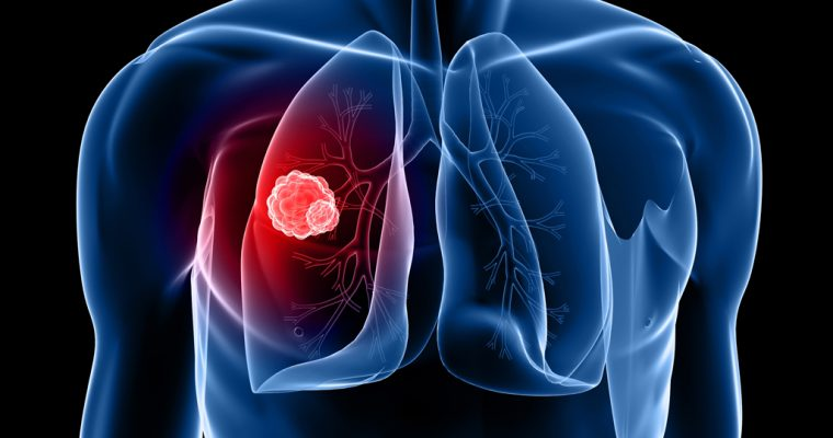 סרטן ריאה מסוג תאים קטנים (SCLC)