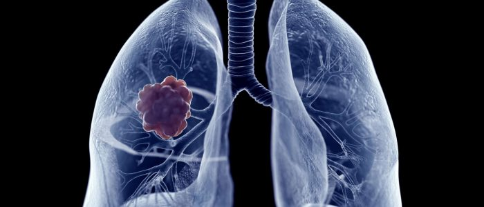 3d,Rendered,Medically,Accurate,Illustration,Of,A,Lung,Tumor